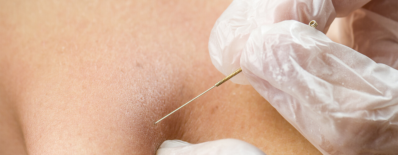 dry needling Mooresville NC